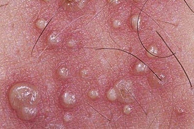 papillomavirus herpes genital)