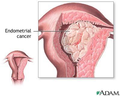 cancer vezica urinara g3)
