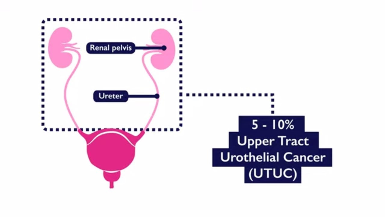 cancer urothelial renal