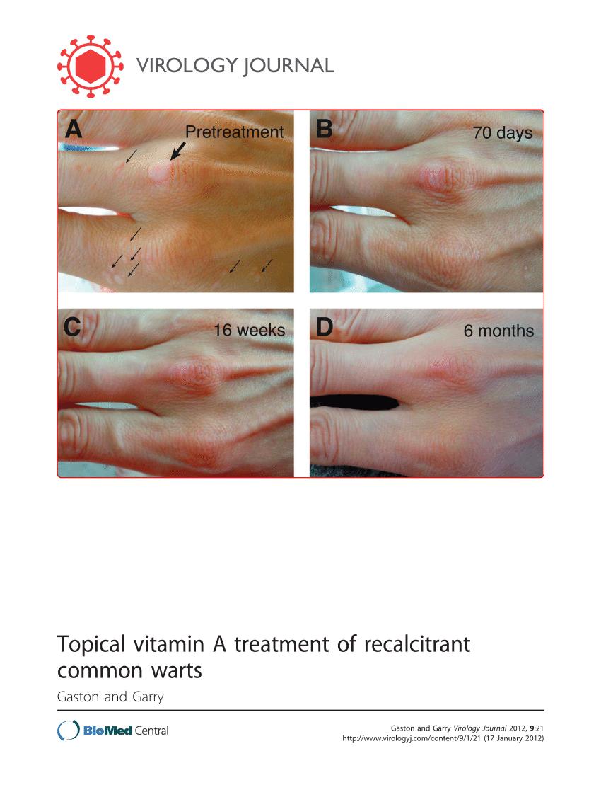 laryngeal papillomatosis spreading