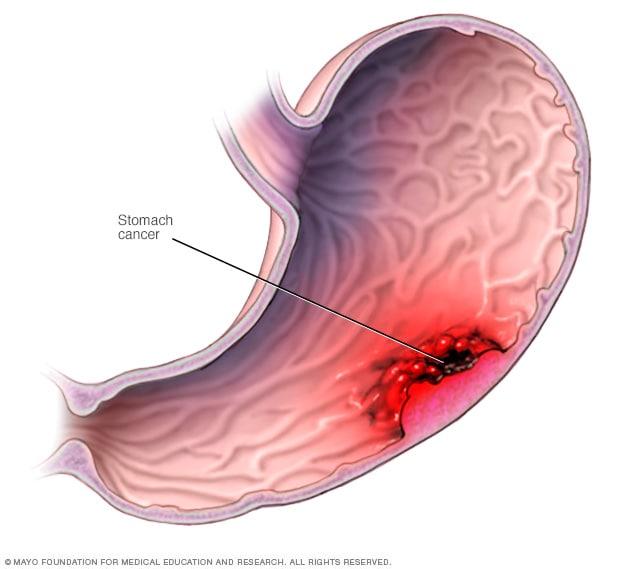 Cancerul gastric: ce simptome trebuie sa ne aduca la medic?
