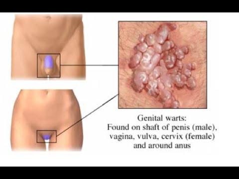 condyloma acuminatum ne demek il papilloma virus passa
