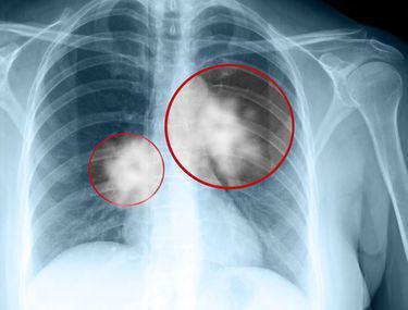 cancerul de plamani doare