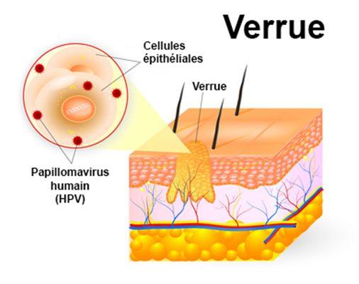 laser papillomavirus traitement