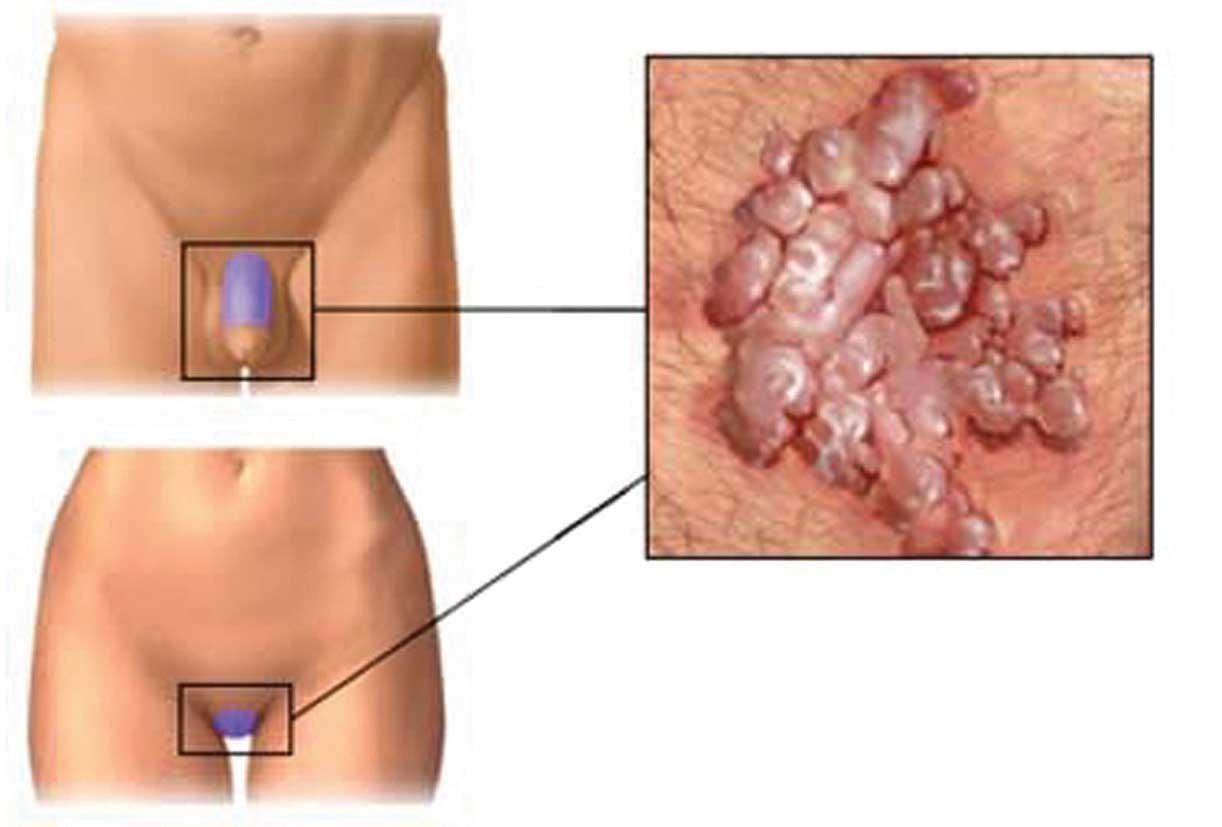 papilloma gola cause
