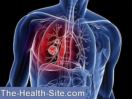 cancer pulmonar cu celule mici vindecat)