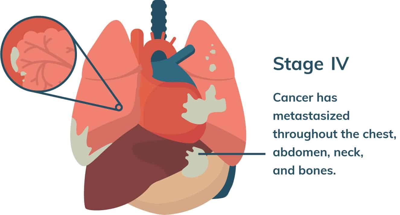 cancer abdominal mesothelioma)
