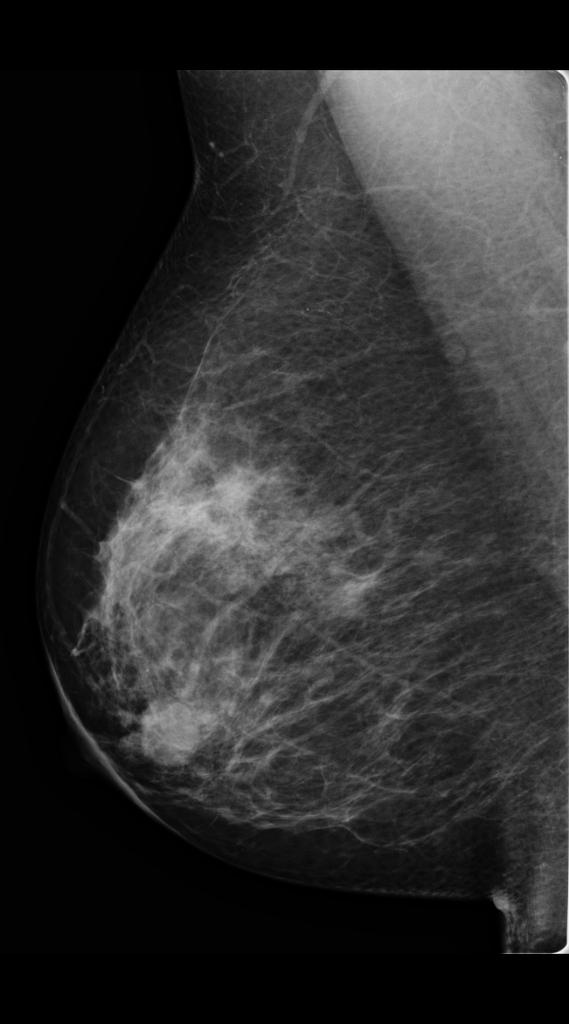 diffuse papillomatosis breast)