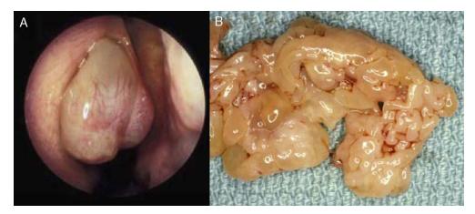 papiloma seno maxilar detoxifierea organismului cu aparat