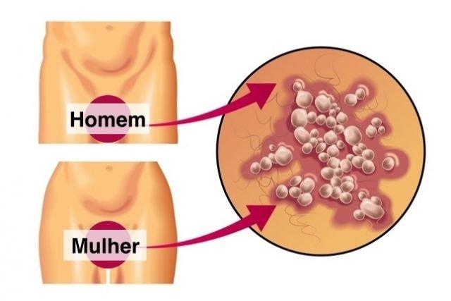 hpv e herpes sao a mesma coisa