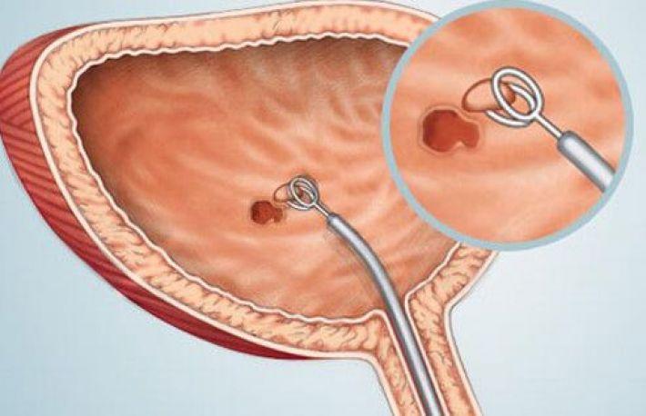 simptomele cancerului vezicii urinare)