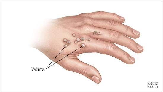 warts on hands spreading)