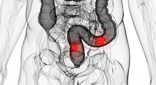 cancer do colo do utero por hpv