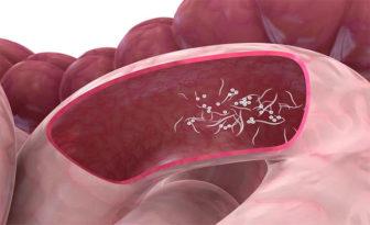 abdominal cancer mri sirop viermisori bebelusi