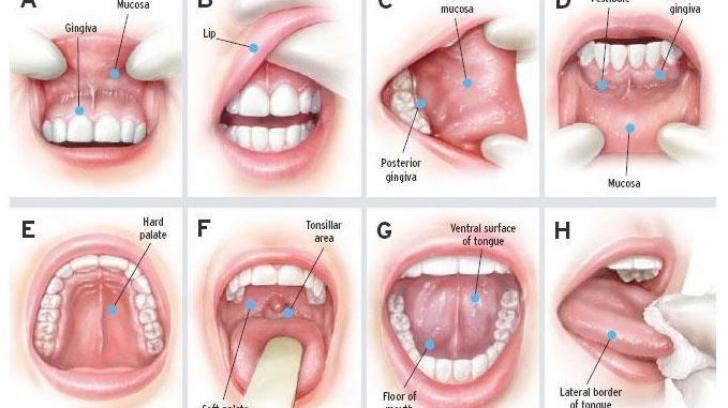 cancer malign la coarda vocala)
