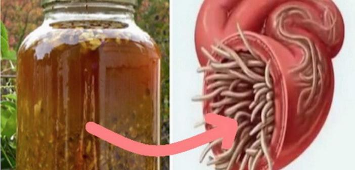 10 indicii că ai paraziţi în corp – Doctor Expres