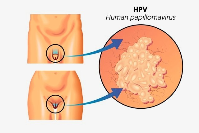 papillomavirus how to treat)