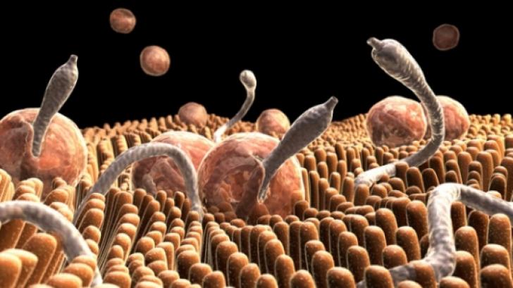 analiza paraziti intestinali