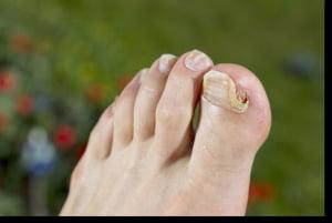ciuperci ale piciorului)