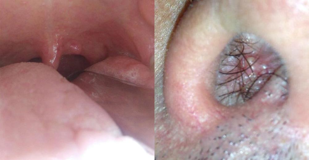 papilloma virus gola immagini