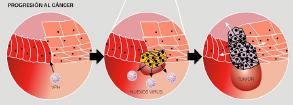 papiloma humano en hombres+tiempo de incubacion
