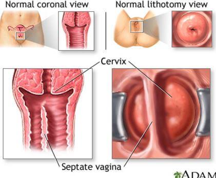 papillomatosis during pregnancy)