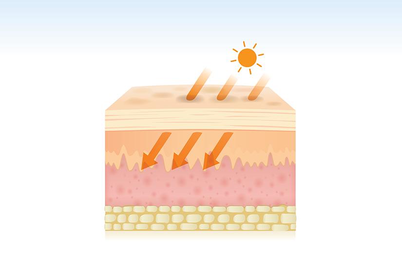 Tot ce trebuie sa stii despre cancerul de piele si preventia sa   Blog   Medihelp