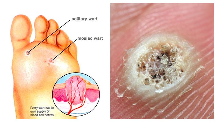 foot wart diagram how anthelmintic drugs work