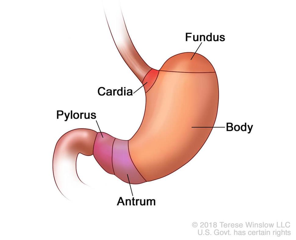 Cancerul gastric (cancerul de stomac)