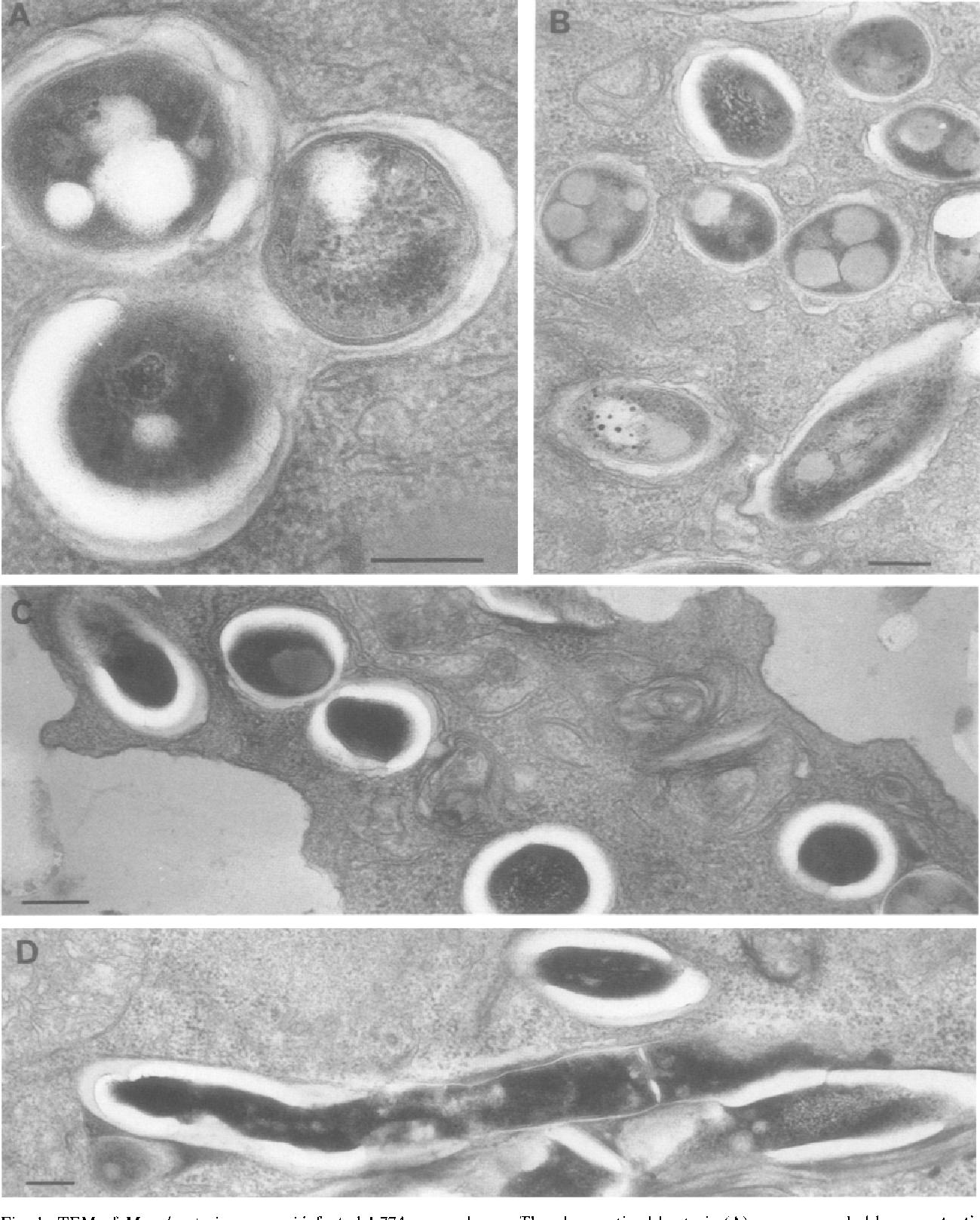 Netuberkuzenye micobacteriilor