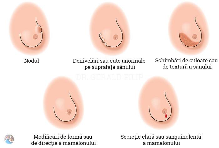 Tot ce trebuie să știi despre cancerul mamar