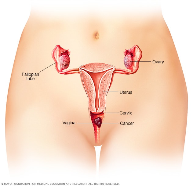 feminine cancer symptoms