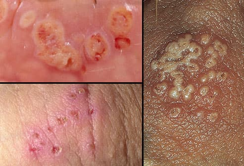hpv warts and herpes)