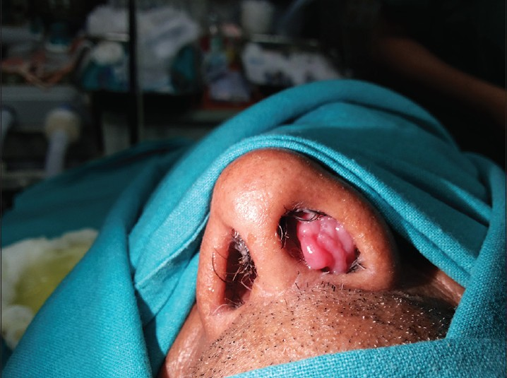 inverted papilloma in the nose)