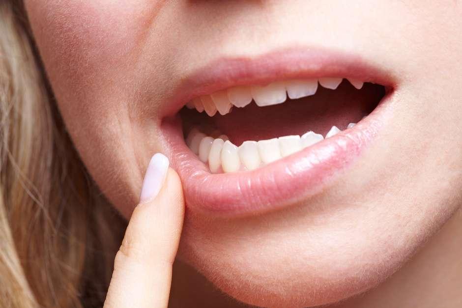 papiloma humano en la boca imagenes anemie d biermer