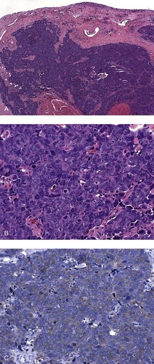 papillomatosis dermatosis papiloma que es