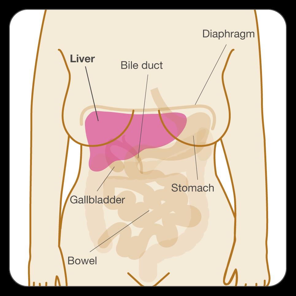 breast cancer abdominal metastases