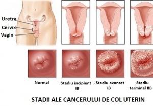 cancer col uterin)