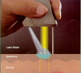 warts treatment by laser)