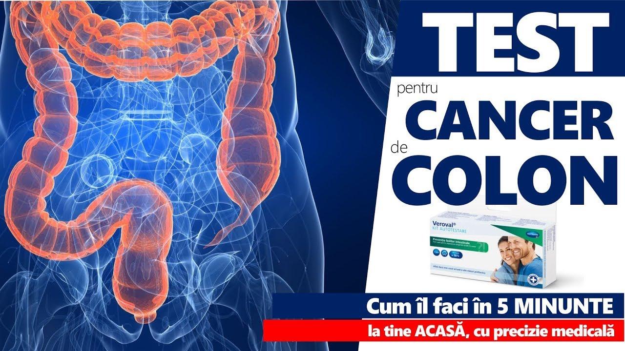 cancer de colon simptome analize virusi papiloma