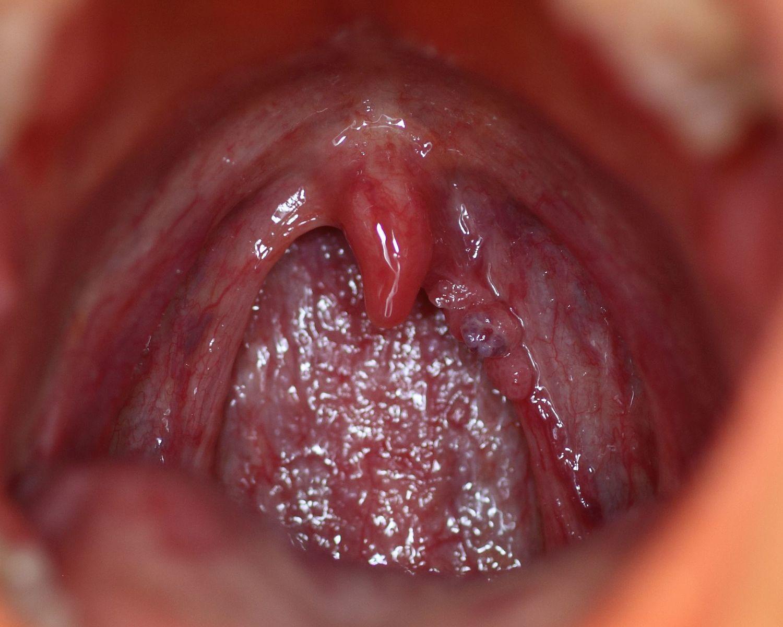 define papilloma medical