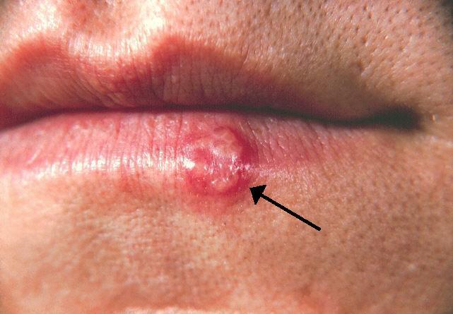 Infectii cu transmitere sexuala (ITS)