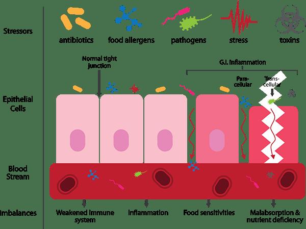 dysbiosis leaky gut)
