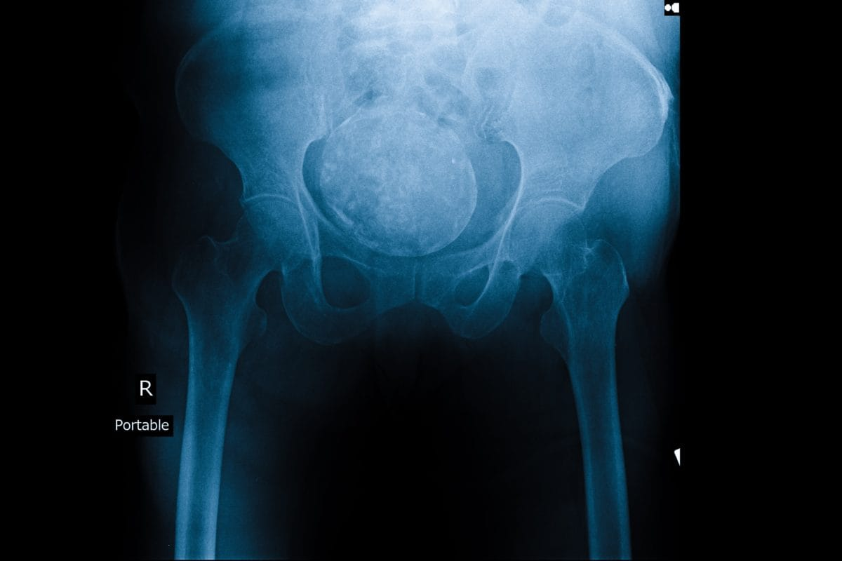 ovarian cancer on x ray
