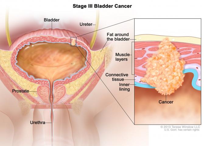tratament cancer vezica urinara
