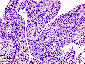 papillary urothelial tumors)
