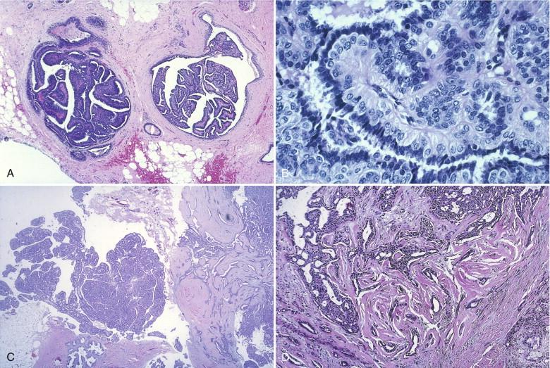Oncolog-Hematolog Nr. 35 (2/) by Versa Media - Issuu