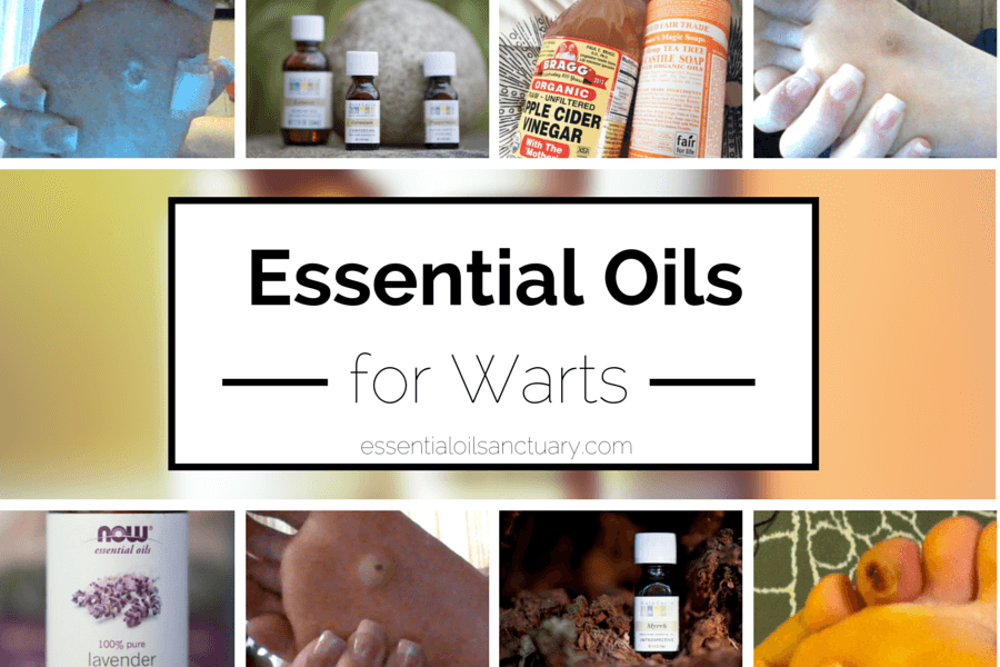 wart treatment essential oil)
