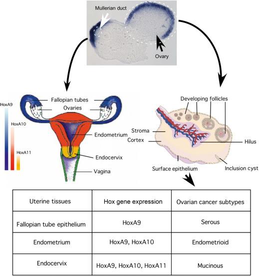 ovarian cancer epithelial)