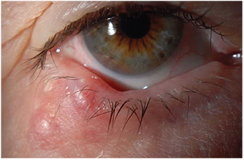 wart on lower eyelid